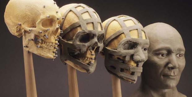 3d facial bone reconstruction
