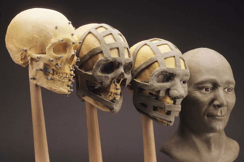 3d facial bone reconstruction